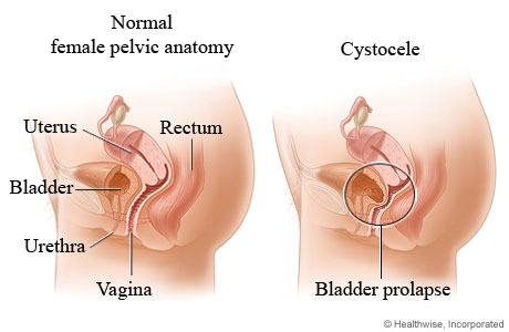 Bladder Prolapse